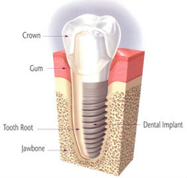 Implant Restorations | East Colonial Dental Group | Maria Lauzan-Madruga DMD | Orlando, FL 32803