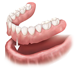 Removable Dentures | East Colonial Dental Group | Maria Lauzan-Madruga DMD | Orlando, FL 32803