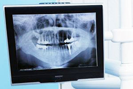 Digital Dental X-ray | East Colonial Dental Group | Maria Lauzan-Madruga DMD | oRLANDO, fl 32803