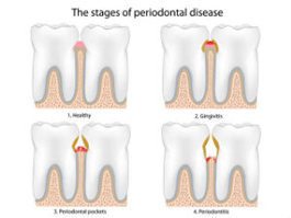 Periodontal Therapy| East Colonial Dental Group | Maria Lauzan-Madruga DMD | Orlando, FL 32803